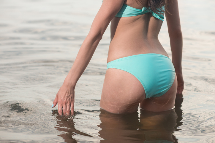 A Plastic Surgeon Explains The Safety Of A Brazilian Butt Lift