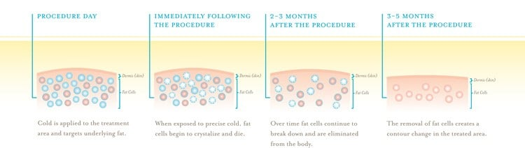 coolsculpting graphic-1