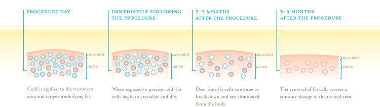 coolsculpting graphic-2