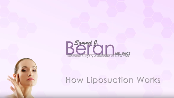 cover-how liposuction works