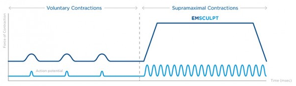 emsculpt chart